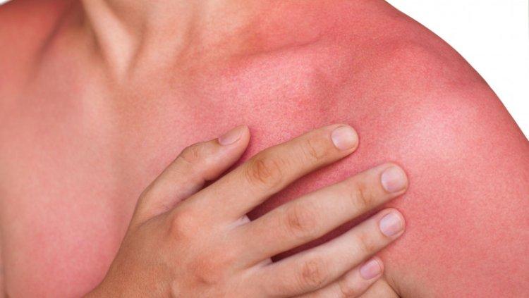 Remedii naturale pentru arsuri solare